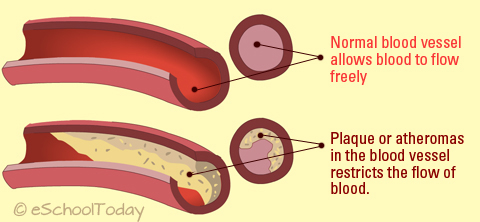 Atherosclerosis is commonly confused with Arteriosclerosis