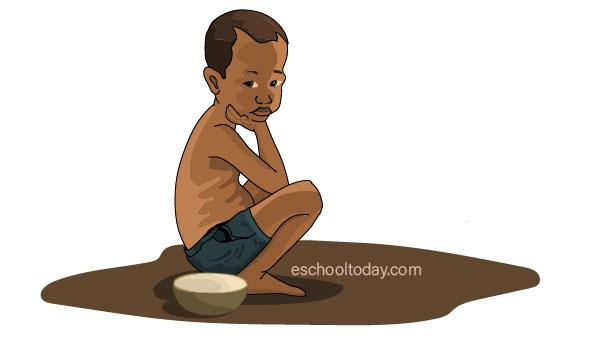 Chronic hunger in the world
