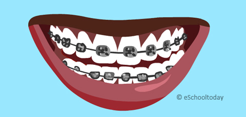 Teeth Braces